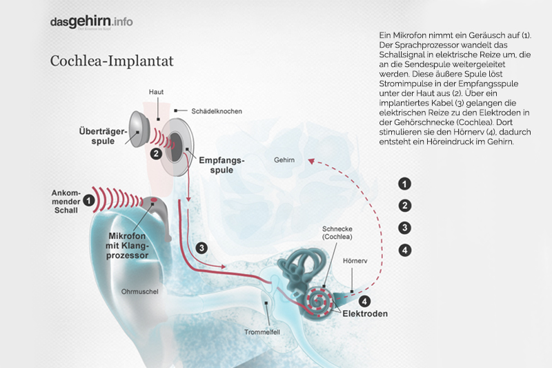 Mit der richtigen Behandlung gegen den Tinnitus.
