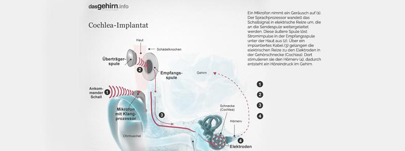 Behandlung von Tinnitus: Endlich wieder Ruhe im Ohr