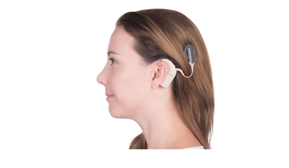 Cochlea Implantate: Sprachverständnis vorhersagen
