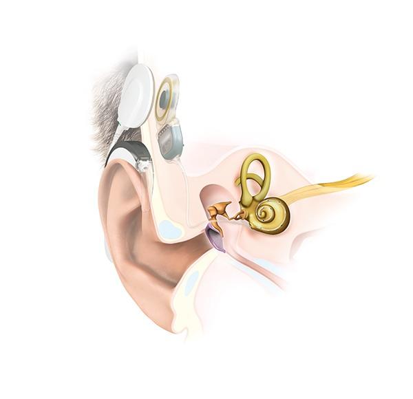 Schemazeichnung eines Cochlea-Implantats