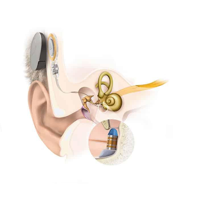 Modellbild eines eingesetzten Mittelohrimplantats